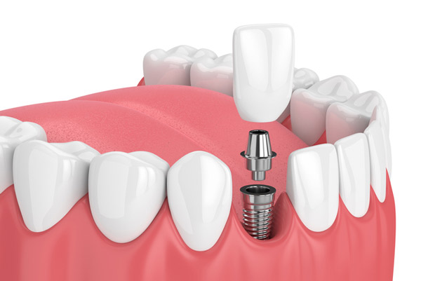 Rendering of a dental implant at Watermark Dentistry in Normandy Park, WA