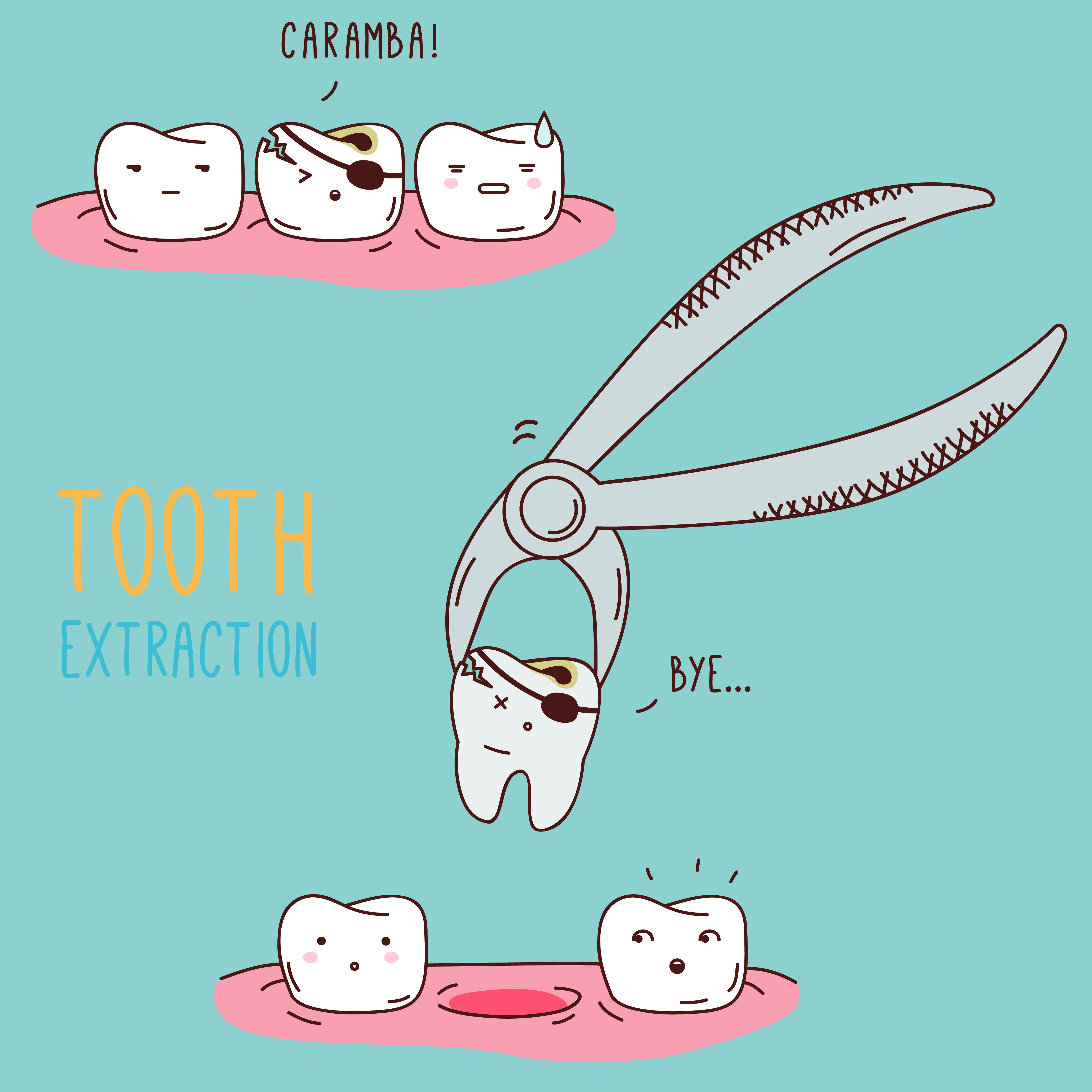 Diagram of a tooth extraction at Watermark Dentistry